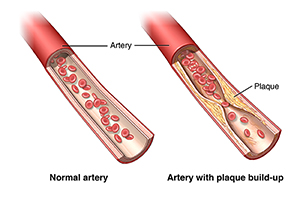 View of a normal artery and an artery with plaque buildup