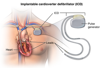 Implantable cardioverter defibrillator (ICD) and it's location in the chest