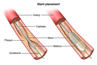 Part of an artery showing plaque buildup. A catheter and stent are in place.